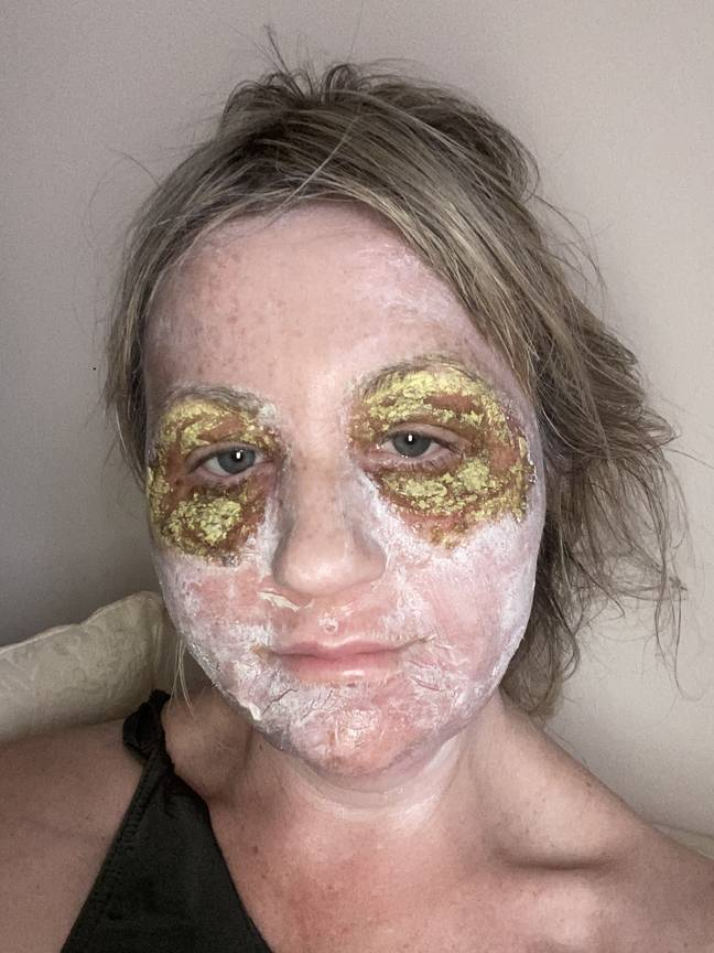 It took weeks for skin to heal (Credit: Kennedy News)