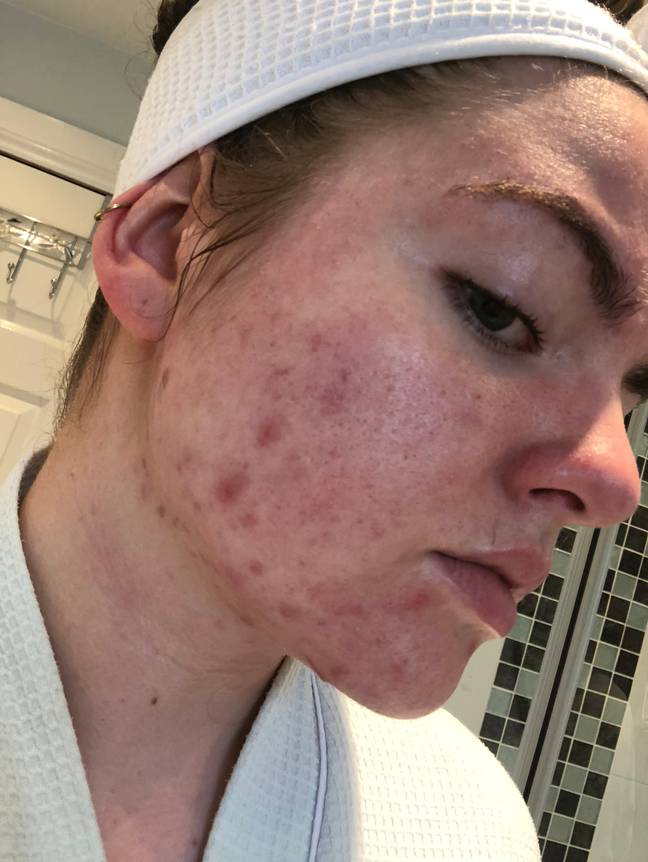 Vanessa's acne used to knock her confidence (Credit: Triangle News)
