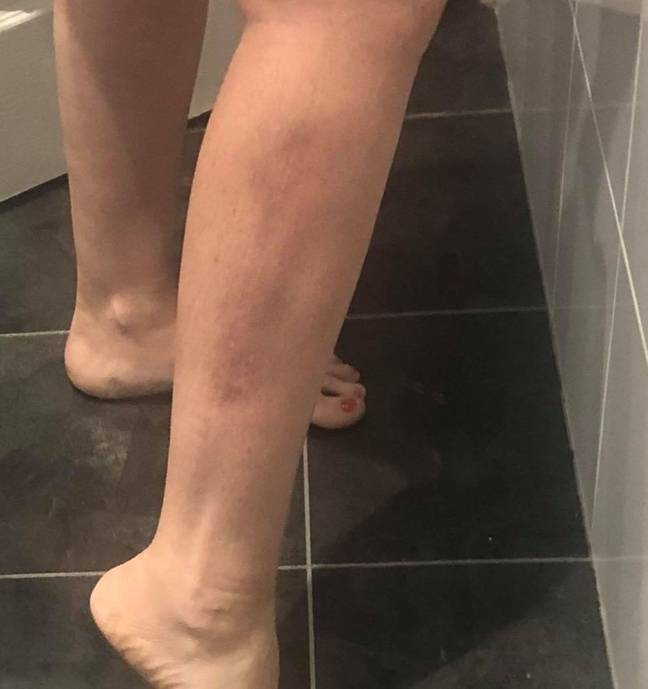 Caroline started noticing strange symptoms, like 'scar tissue' forming on her leg (Credit: Kennedy News)