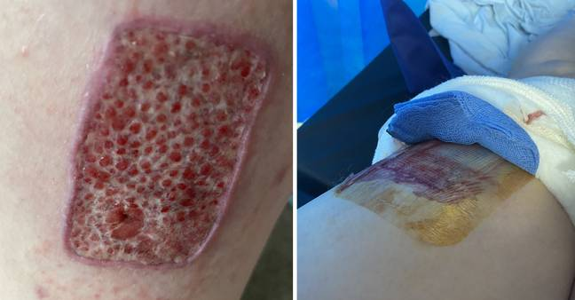 The skin graft (Credit: Kennedy News & Media)