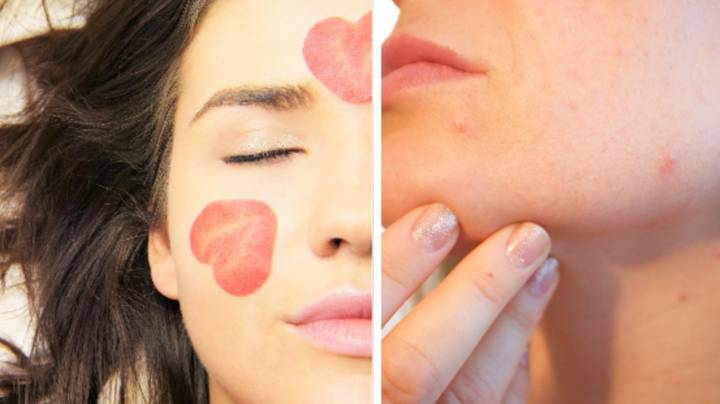 ​Popping A Spot On This Part Of Your Face Could Have Fatal Consequences