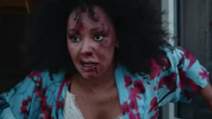 Spice Girls' Mel B Wears Bruises As She Opens Up On Domestic Abuse For Women's Aid