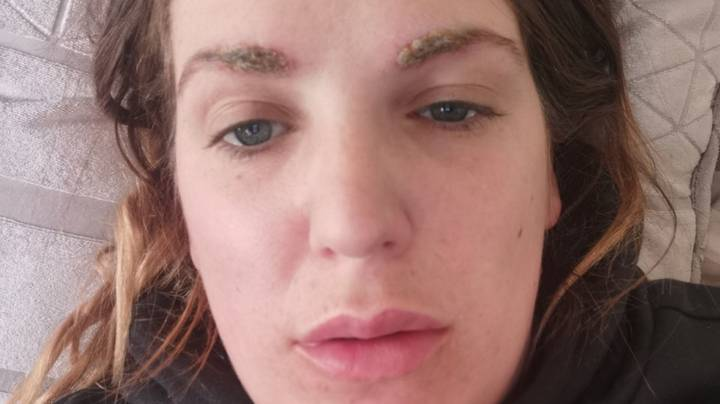 Salon Owner Who Forgot To Patch Test Left With 'Crusty Caterpillar' Brows Following Allergic Reaction