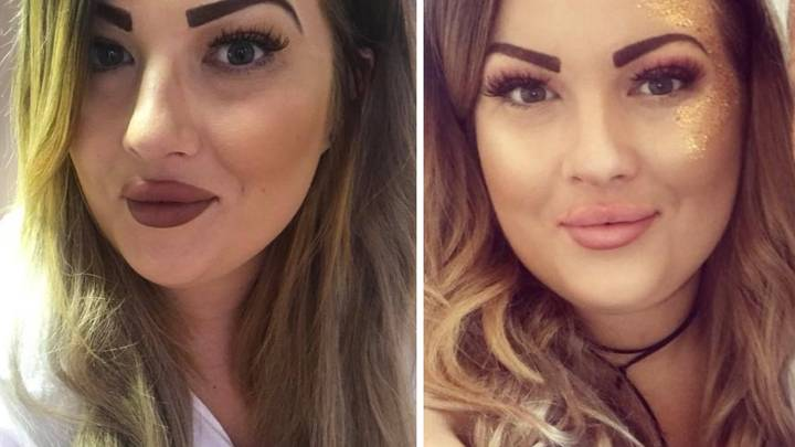 Woman Left With Red Mustache After Being Burned By Hair Removal Cream
