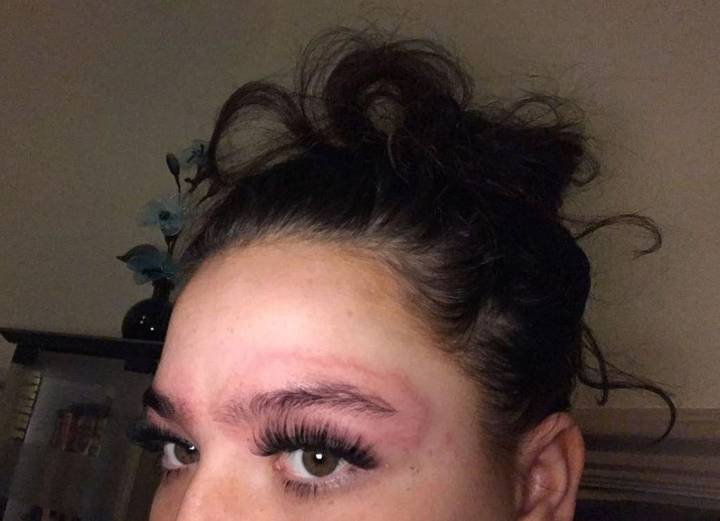 Woman Left Looking Like She'd Been Beat Up After Eyebrow Dye Reaction