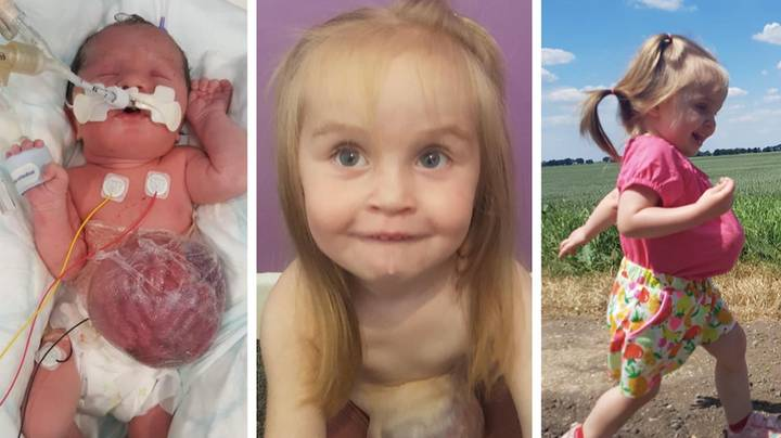 Two-Year-Old Toddler Born With Organs Outside Her Body Defies Odds After Fears She Wouldn't Survive Birth