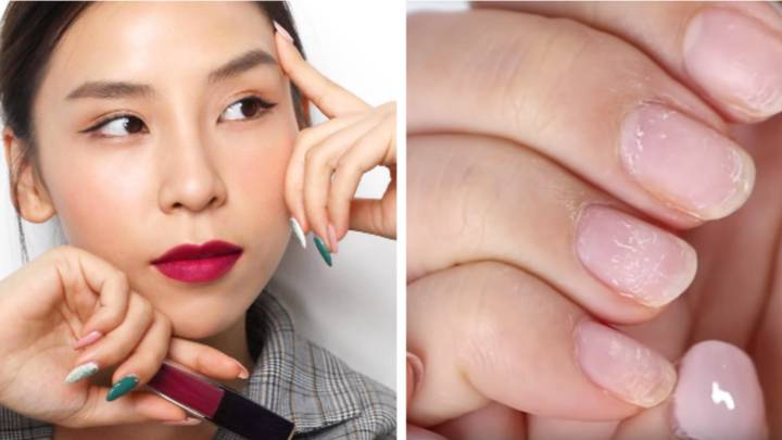 ​YouTuber Shows What Years Of Gel Manicures Have Done To Her Nails
