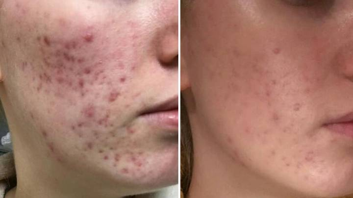 Thousands Of Acne Sufferers Claim This £25 Pill Has Cleared Up Their Bad Skin For Good