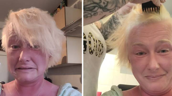 Woman Forced To Shave Her Head After Epic Bleaching Fail