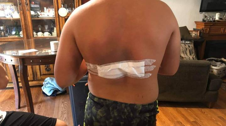 Mum's Urgent Warning After Son's 'Exploding' Phone Charger Leaves Him With Horrific Burns