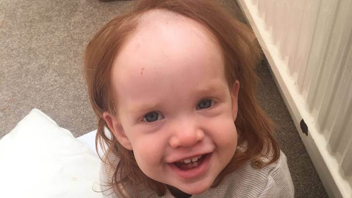 Little Girl Is Left Looking Like Pennywise After Stealing Hair Removal Cream