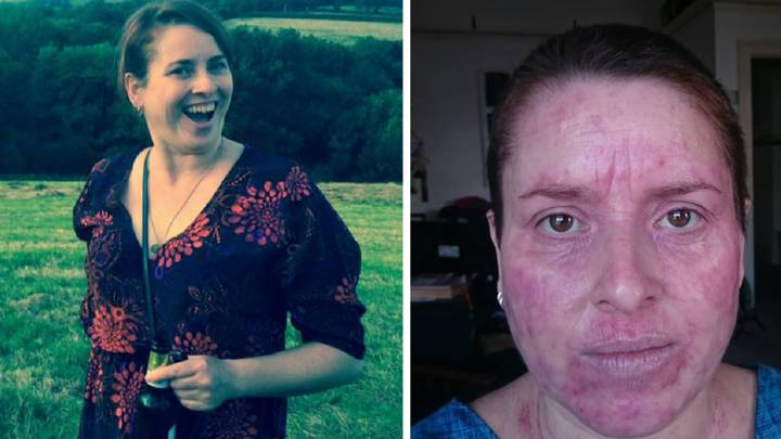 Woman's Skin 'Hot Enough To Fry Eggs On' After Beer Sparks 'Eczema Flare-Up'