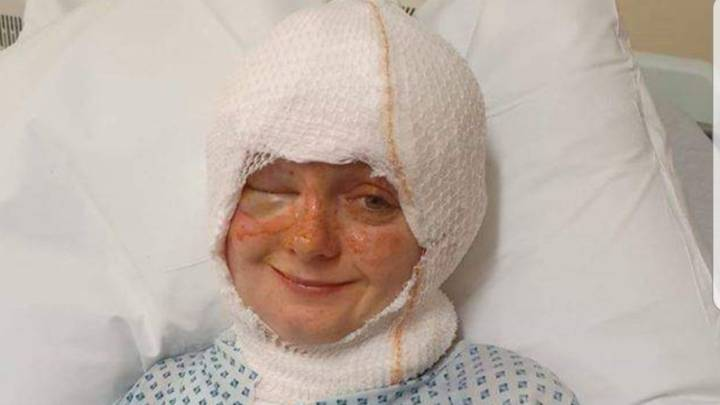 Woman Suffers Severe Burns To Face As Her Hair Sets Alight Blowing Out Candle