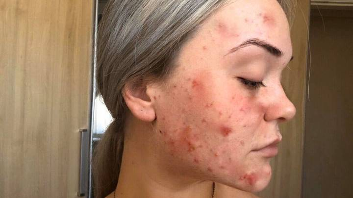 Woman With Chronic Acne Shows Off 'Life-Changing' Transformation