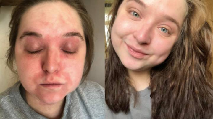 Woman Cures Painful Eczema Flare-Ups With £17 'Miracle' Cream