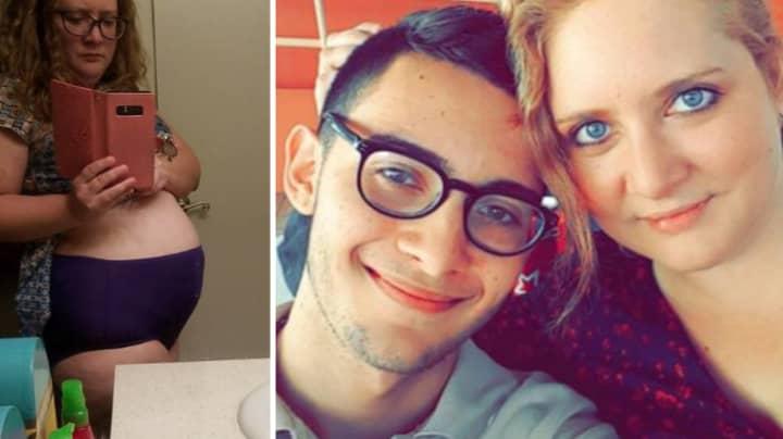 Woman Says Her Endometriosis Makes Strangers Think She's Heavily Pregnant