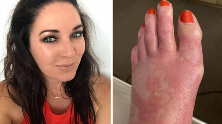 Woman Suffers Burns After Margarita Spilt On Foot
