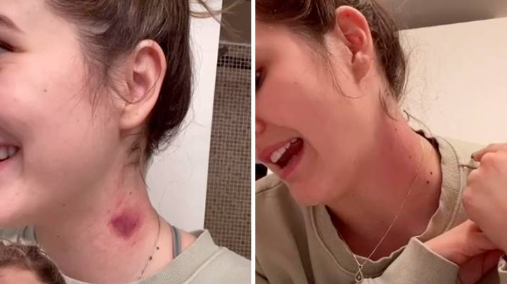 This Girl's Hack Gets Rid Of Hickeys In 5 Minutes