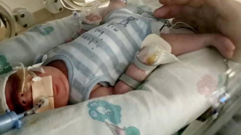 Miracle Baby Weighing 1lb 11 Beats Covid, Sepsis And E.Coli