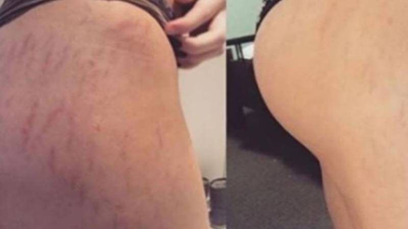 Women Can't Stop Raving About Frank Body's Original Coffee Scrub In Dramatic 'Before And After' Pics