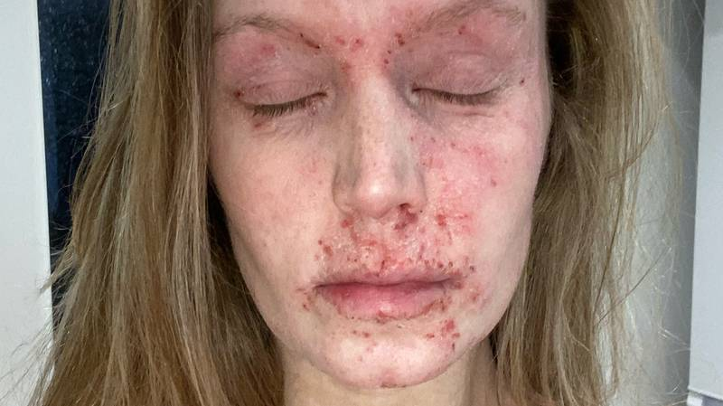Eczema Sufferer Issues Urgent Warning About The Dangers Of Topical Steroid Use