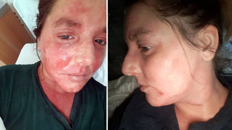 Woman Claims To Have Cleared Up Her Severe Eczema With CBD Oil