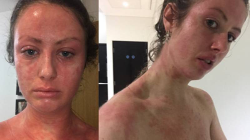 Eczema Suffer Says £15 Coffee Scrub Helped Improve Her 'Life-Limiting' Skin Condition