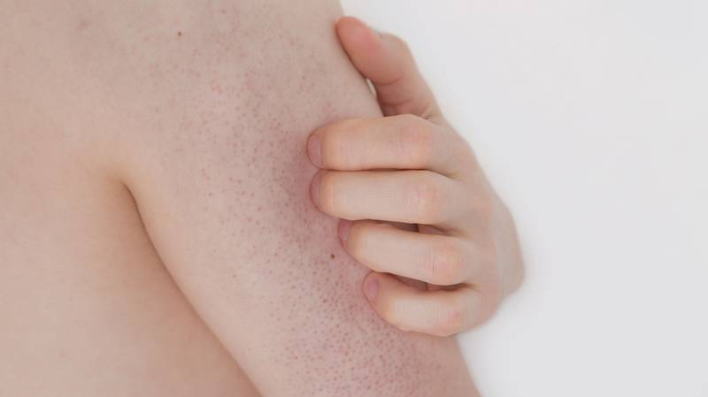 Here's How To Get Rid Of Chicken Skin AKA Those Annoying Bumps On The Back Of Your Arms
