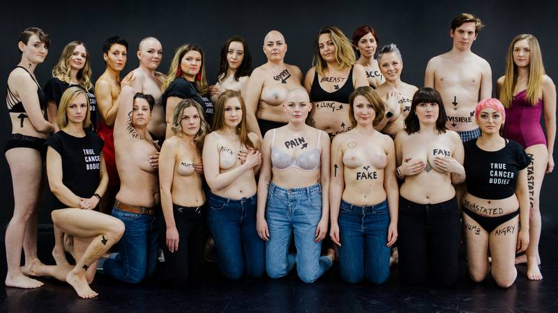 Cancer Survivors Show Off Scars In Powerful Pictures For New Social Media Campaign