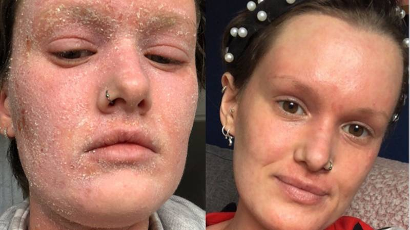 Woman With Severe Eczema Reveals Condition Leaves Her Feeling Like Her Skin Is 'On Fire'
