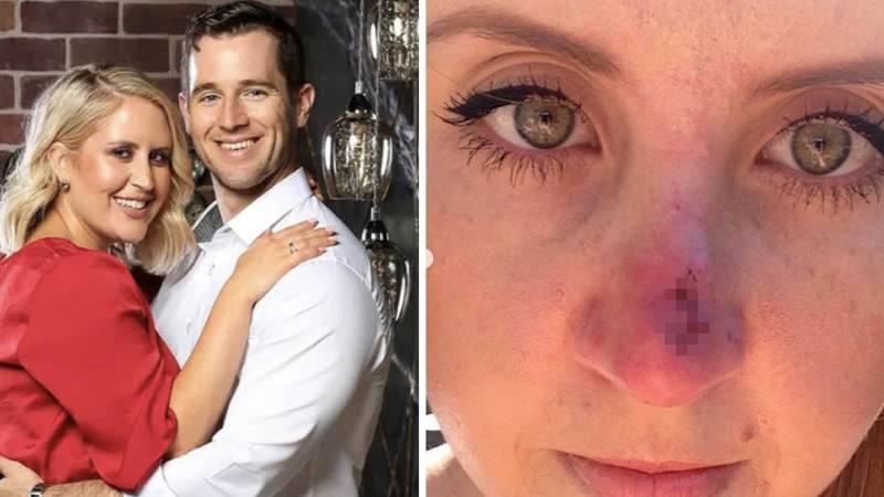 MAFS Australia's Lauren Reveals She Had Nose Job After Pimple Turned Out To Be Skin Cancer
